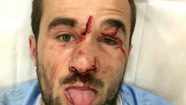 L'impressionnante blessure du Bayonnais Laveau