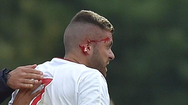 Pour ses débuts avec Bordeaux, Ménez a eu l'oreille coupée