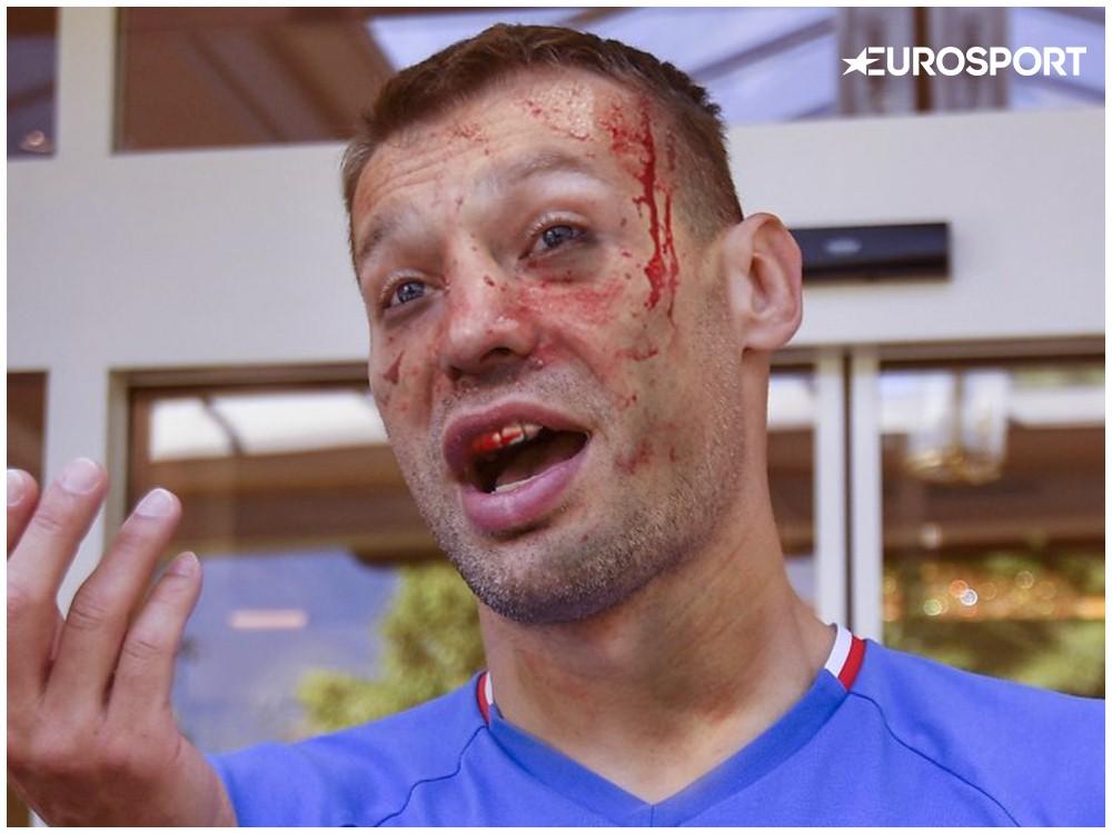 UFC Березуцкий