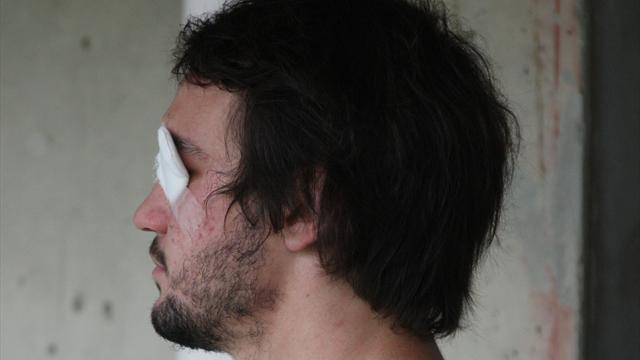 Cazenave : «Mon handicap ne doit plus être perçu comme tel»