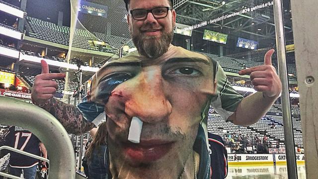 Хоккеист получил шайбой влицо, однако продолжил играть сгематомой