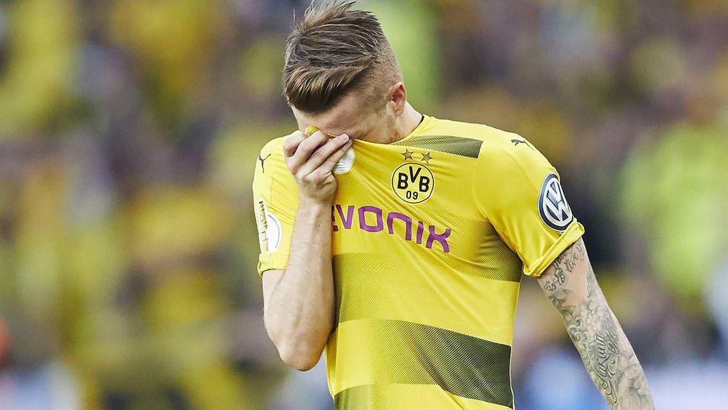 Offizielle Diagnose: BVB-Pechvogel Marco Reus mit Kreuzband