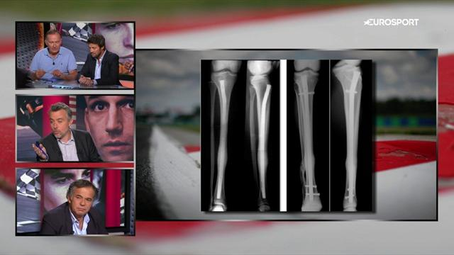 Le docteur Antoine explique comment la fracture de Rossi a été traitée
