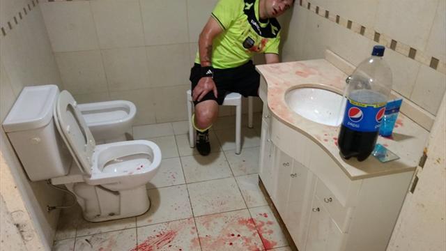 Кровавая фотка аргентинского судьи, которому фанаты пробили голову камнем