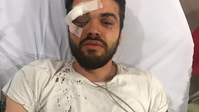 Регбист первой в истории Латинской Америки гей-команды был жестоко избит в Буэнос-Айресе