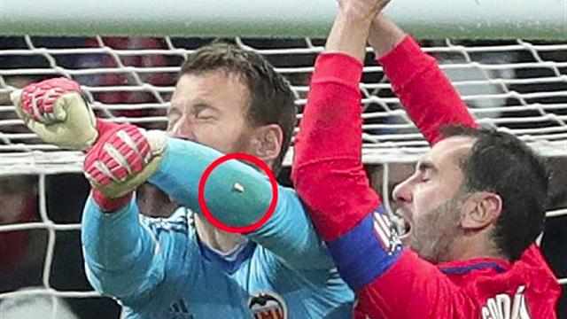 Après un gros choc contre Valence, Godin a perdu une dent