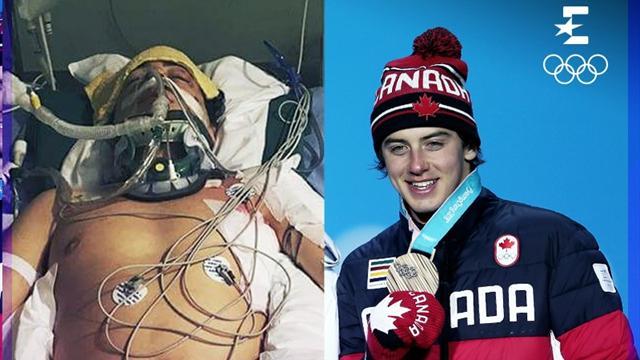 "Mark ""The Unbroken"" McMorris: dallo spaventoso incidente al bronzo olimpico"