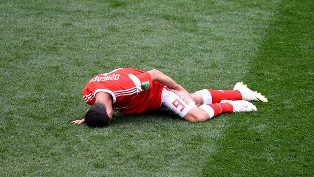 Дзагоев пропустит матчи с Египтом и Уругваем