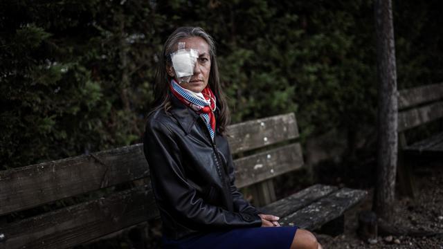 La espectadora de la Ryder Cup que tras perder un ojo demandará al torneo