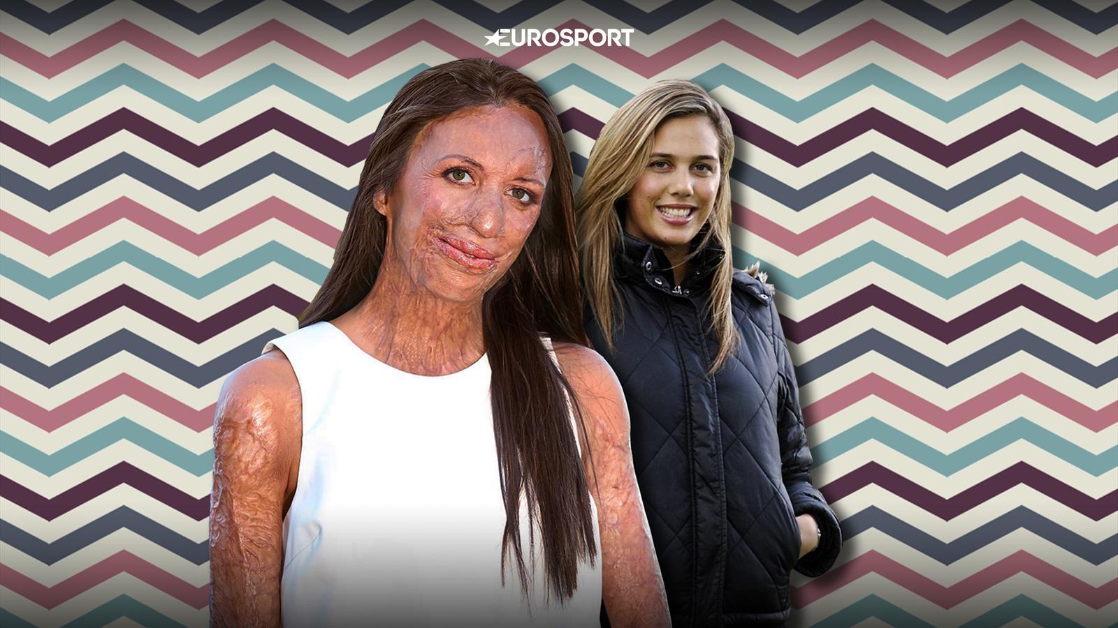 Пожар изуродовал участницу «Мисс Австралия». Она перенесла 200 операций, вернулась в спорт и родила