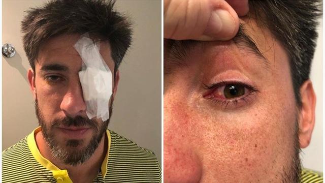 """River-Boca, tutta la rabbia di Pablo Perez: """"Se perdo l'occhio, non me lo restituisce nessuno"""""""