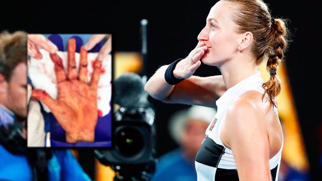 Das Kvitova-Märchen: Grand-Slam-Finale nach fieser Messerattacke
