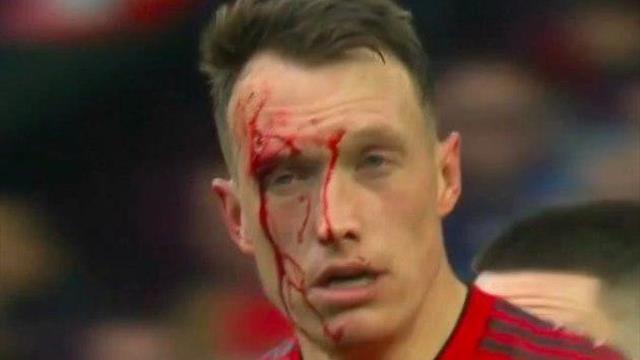 Джонс в кровь разбил лицо и запугал «Вест Хэм»