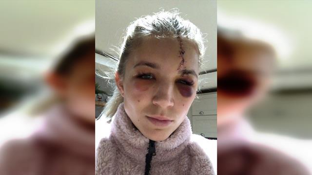 Вратарь женского «Ливерпуля» получила страшную травму: поперек лба – шов, под глазами – гематомы