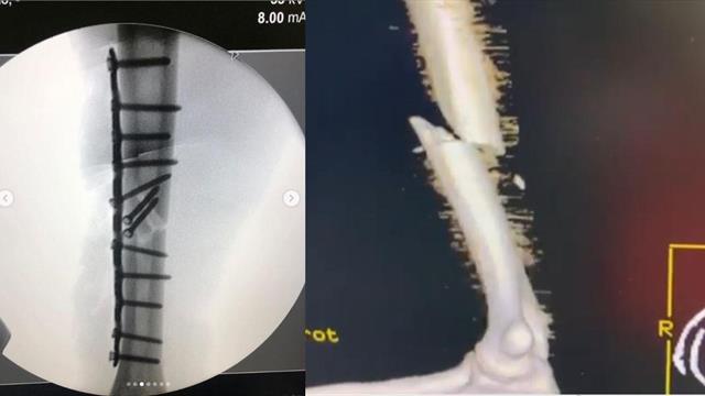 ¡Impresiona! La radiografía 3D que muestra el húmero de Márquez roto y su posterior reconstrucción